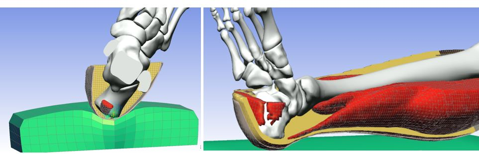Lower Limb Model